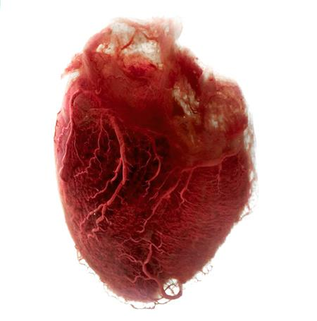 a human heart stripped of the tissue and muscle surrounding it